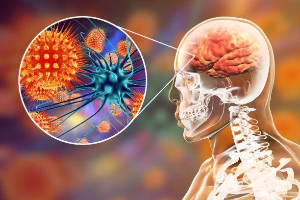 Jak poznáte zákeřného meningokoka