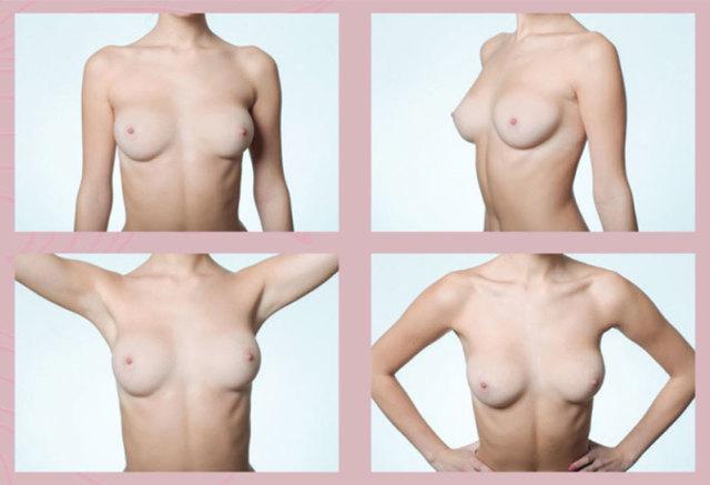 Rakovinu prsu odhalíte včas díky samovyšetření