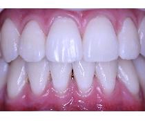 Nová zubní pohotovost ve Středočeském kraji