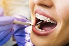 Máte citlivé zuby? Na studené, nebo na sladké?
