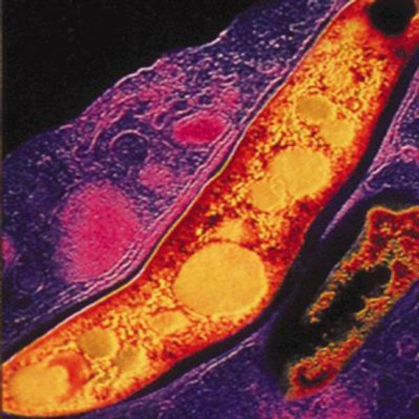Je očkování proti tuberkulóze zbytečné?