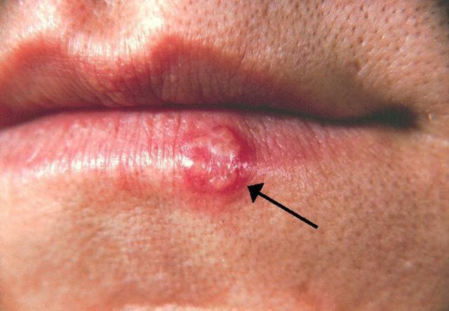 Suché a popraskané rty: příčiny a léčba