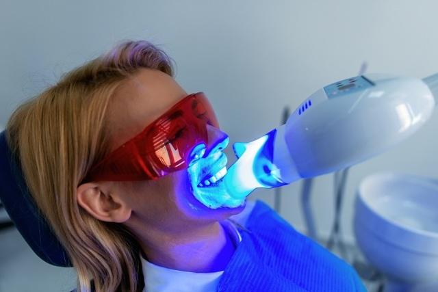 Metody bělení zubů: přírodní, mechanické a chemické