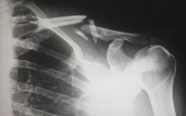 Gaucherova choroba – příznaky, příčiny a léčba