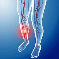 Bércové vředy – jak vypadá jejich léčba?