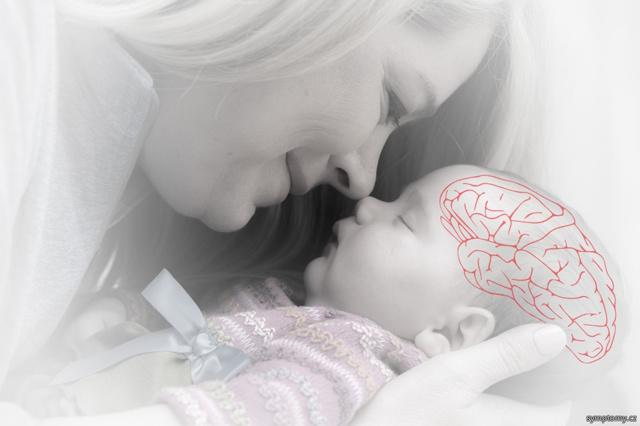 Dětská mozková obrna – příznaky, příčiny, léčba
