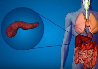 Rakovina slinivky – příznaky, příčiny a léčba