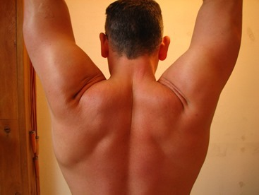 Co je to artróza?
