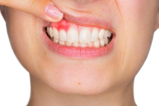 Jak na opuchlé, oteklé a bolestivé dásně?