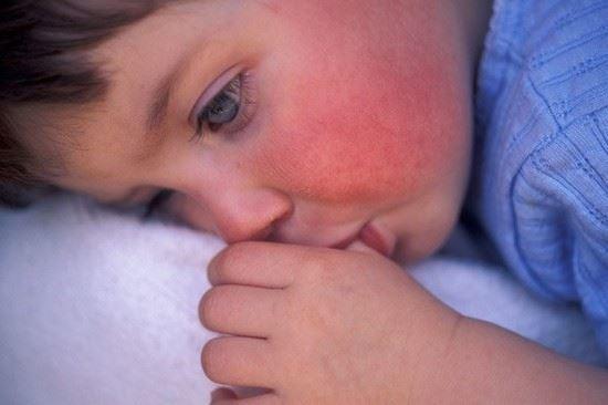 Spála (neboli šarlach) – příznaky, příčiny a léčba