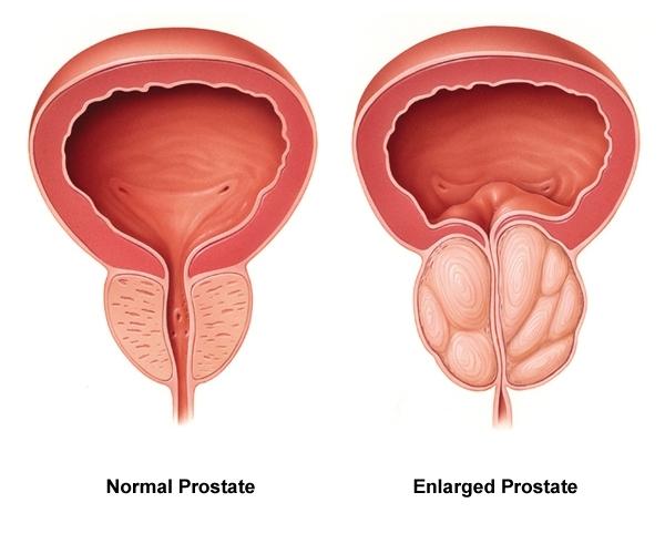 Benigní hyperplazie prostaty – zvětšená prostata