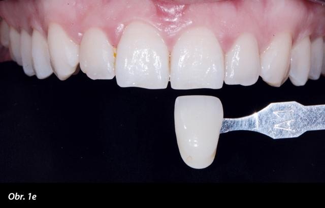 Bílé skvrny na zubech – co to je a jak na ně?