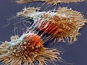 Rakovina (nádor) mozku – příčiny, příznaky, diagnóza a léčba
