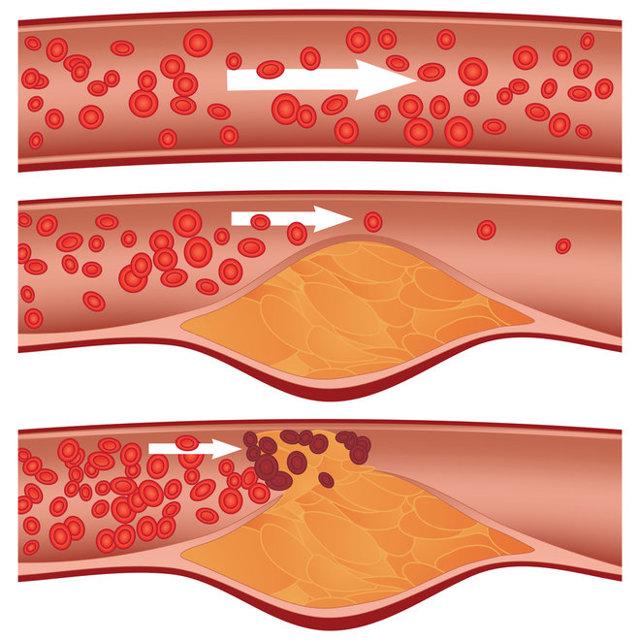 Jak na vysoký cholesterol? Takto ho dokážete srazit a nezvyšovat