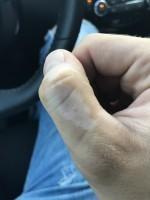 Vitiligo – léčba a příznaky nemoci bílých skvrn