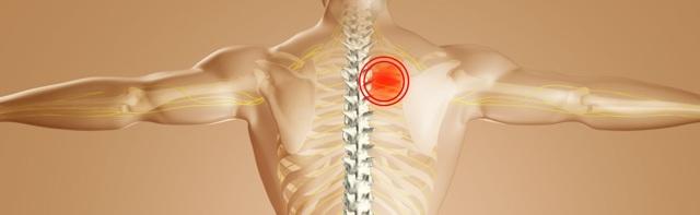 Kostochondritida – bolest na hrudi
