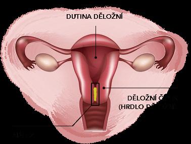 Konizace děložního čípku – co byste o ní měli vědět?