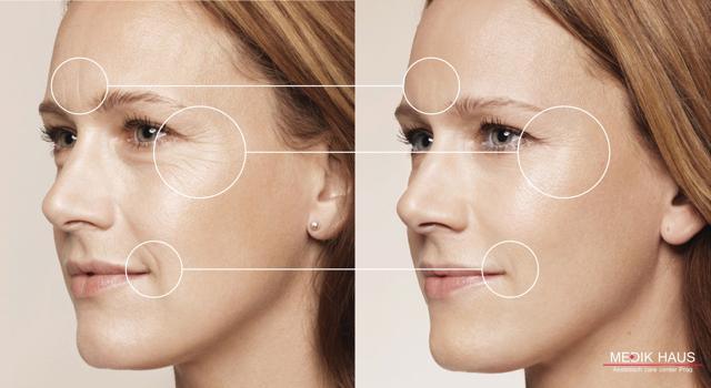 Vyhladí vrásky lépe botox nebo kyselina hyaluronová?