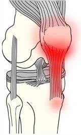 Chcete se vyhnout artróze? Jak na prevenci?