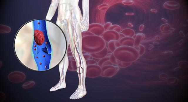 Krevní sraženiny a trombózy v žilách a tepnách