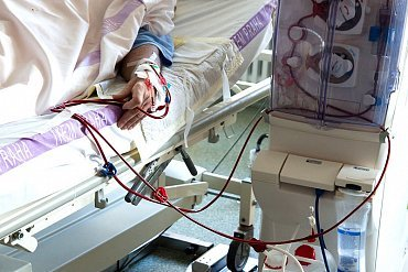 Chci darovat ledvinu. Jak na to?