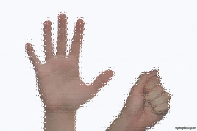 Aspergerův syndrom – co je to? Příznaky a projevy…