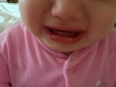 Bílý jazyk či žabka v puse (soor) u kojenců a dětí
