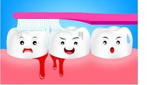 Jak na krvácení dásní? Poradíme vám