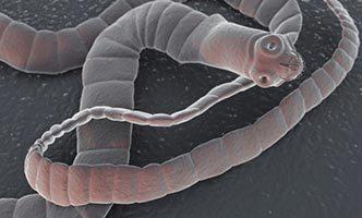 TOP 10 příznaků toho, že máte střevní parazity