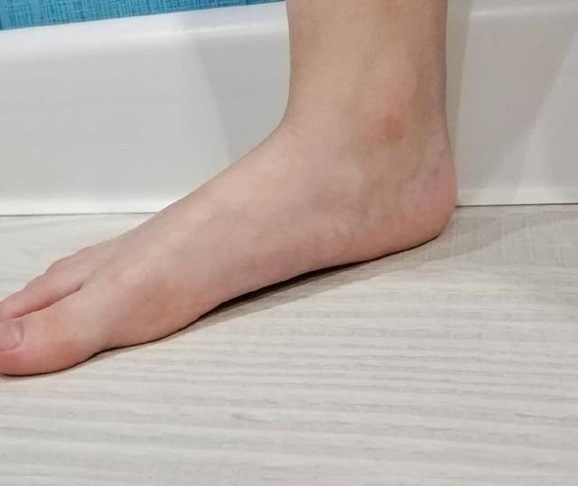 Jak na ploché nohy u dětí?