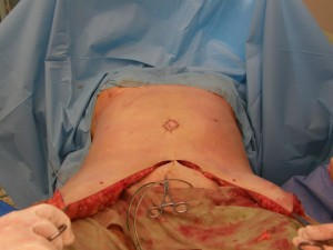 Abdominoplastika – Úprava břišní stěny