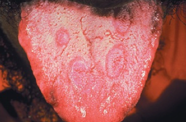 Syfilis – příznaky, projevy, léčba