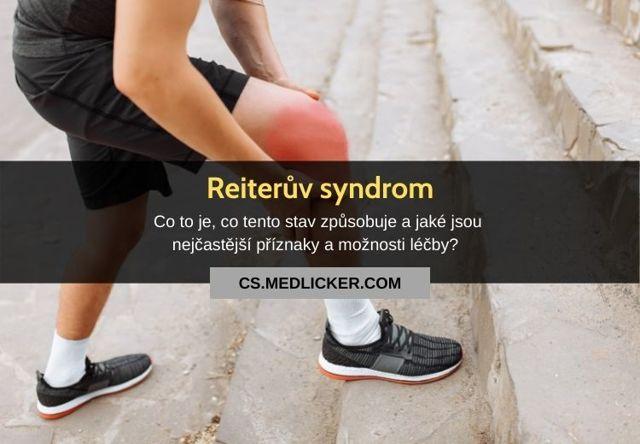 Reiterův syndrom – příčiny, příznaky i léčba