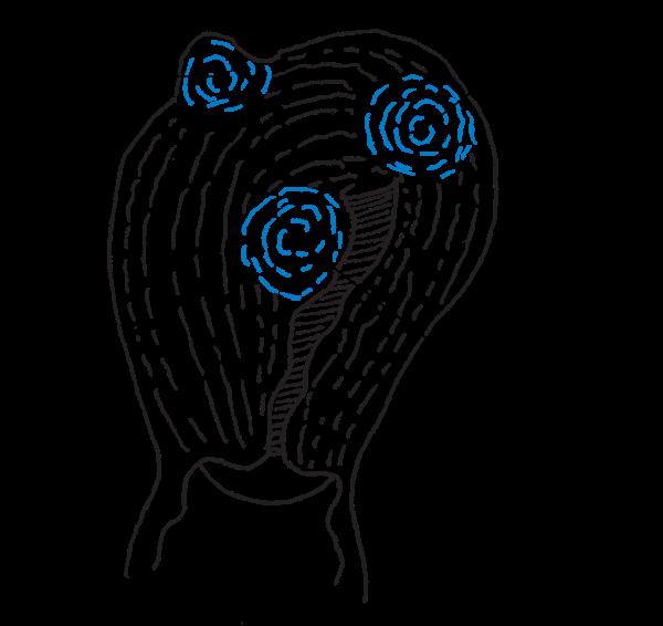 Léčba myomů a cyst (nezhoubné svalové nádory) – jak na ně?