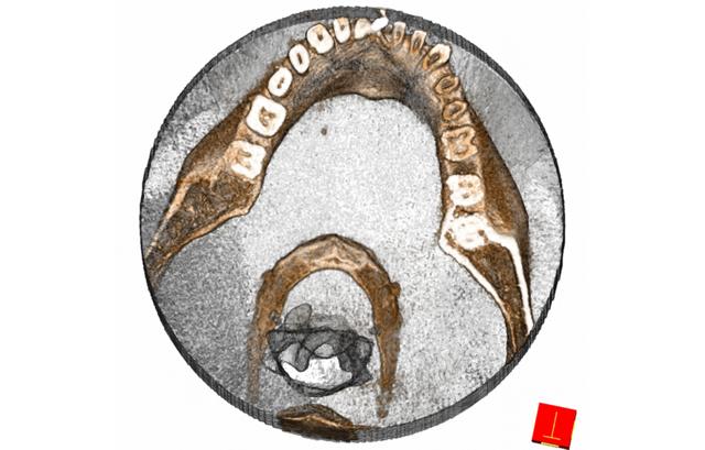 Zubní rentgenové vyšetření – co je dobré vědět