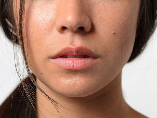 Jak na suchý nos? Jak ho zvlhčit?