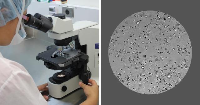 Vyšetření spermií – co vše prozradí?