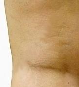 Skleroterapie (sklerotizace) varixů (křečových žil) – jak probíhá? Co je důležité vědět?