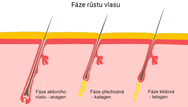 5 nejčastějších příčin vypadávání vlasů (alopecie) u žen i mužů