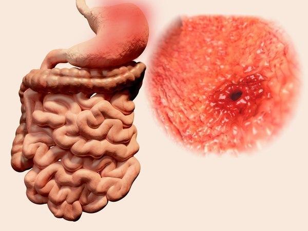 Žaludeční vředy jsou rizikem. Jak se jim vyhnout? Prevence žaludečních vředů.