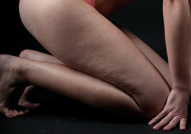 Hubnutí žen a mužů – jaké jsou rozdíly?