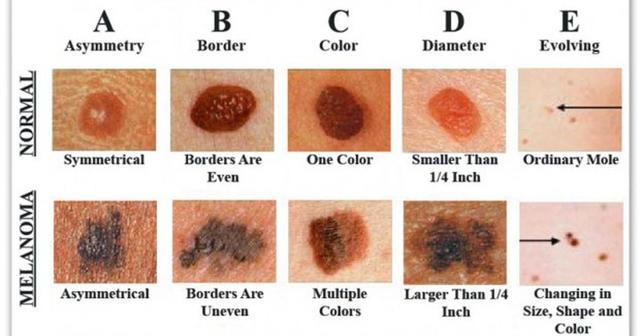 Zmizí nám strie z kůže při opalování?