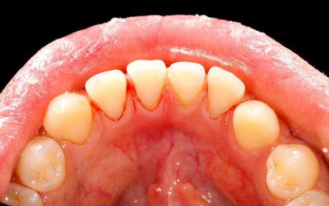 Zanícené dásně – jak na ně?